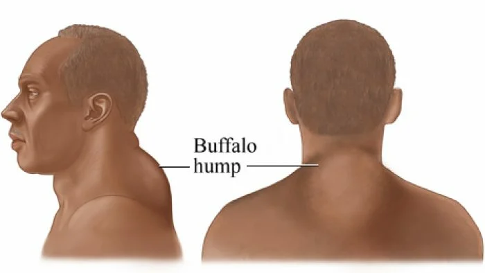 27++ Neck hump removal exercises inspirations