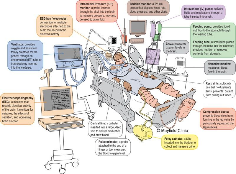 Neuro Icu Patient And Equipment Icu Nursing Critical Care Nursing Nurse Life