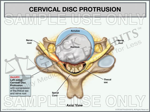 Cervical Disc Protrusion, Left-Sided | Stock Medical Exhibits ...