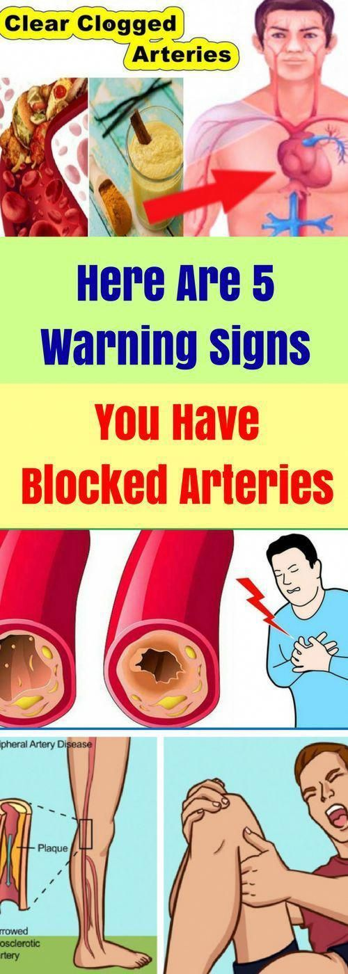 Here Are 5 Warning Signs You Have Blocked Arteries!!!  #wieghtloss  #fitness #HealthTipsForHealthyLi...