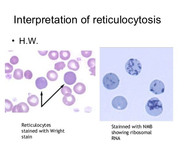 reticulocyte-count-2-638 (638×479) | lab | pinterest, Skeleton