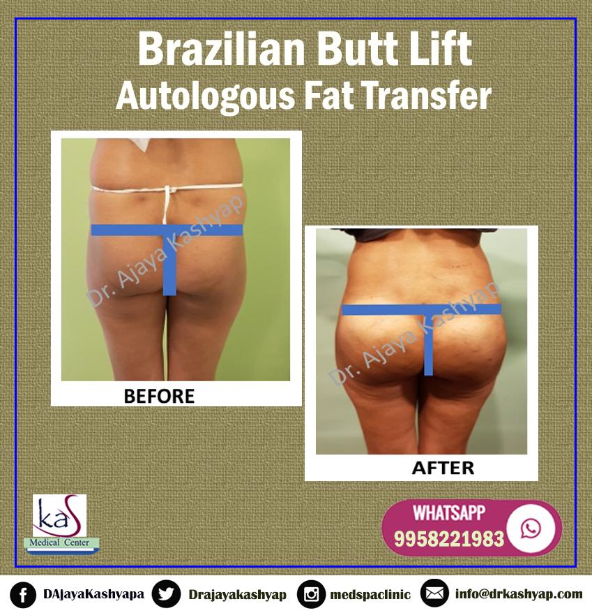 Brazilian butt lift temecula