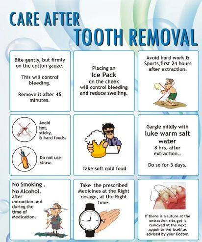 tooth removal instructions