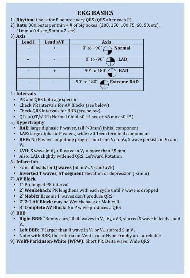 EKG Basics   Paramedic school   Icu nursing, Cardiac nursing