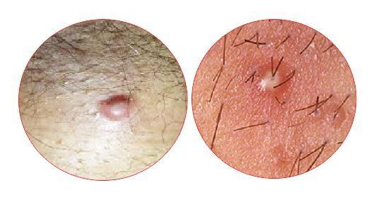 Pediatric itchy growth near anus
