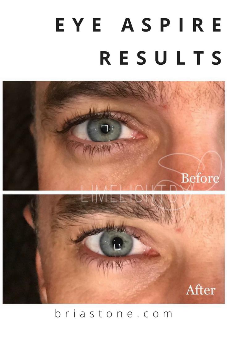 best eye wrinkle cream for men