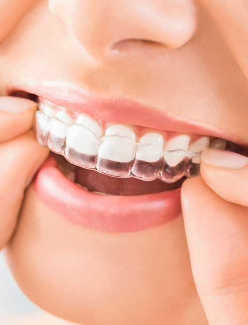 Invisible Braces Company in India | Invisible teeth ...
