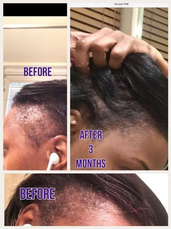 After Only 3 Months I Was Able To Grow My Bald Edges Phew And I Am Glad My Relaxed Hair Grew Back Something T Hair Elixir Hair Growth Formula Hair Growth Kit