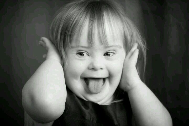 Saved from: Global Down Syndrome Family...(gdsfonline.com) ❤️ | Down  syndrome kids, Down syndrome, Down syndrome baby