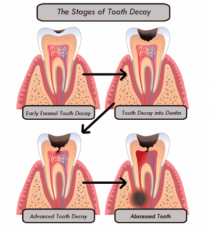 The Stages of Tooth Decay: 1. Early Enamel Tooth Decay. 2 ...
