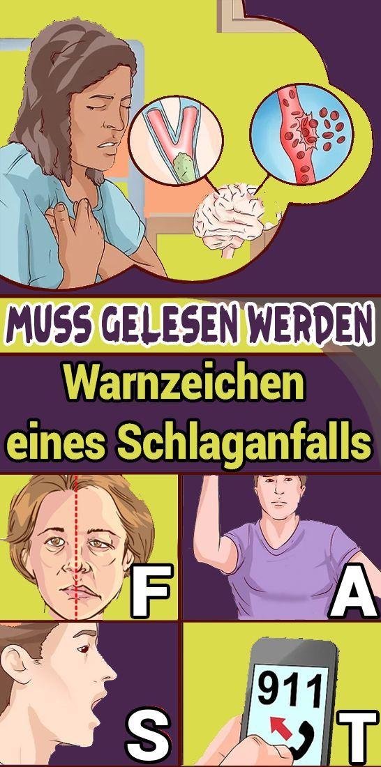 Muss #gelesen #werden: #Warnzeichen #eines #Schlaganfalls,  #Eines #gelesen #muss #Schlaganfa…