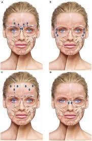 Image Result For Botox Injection Sites Diagram Botox Injection