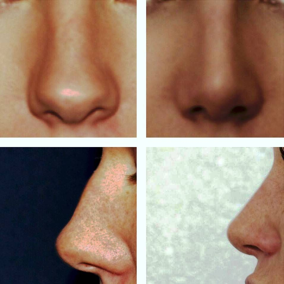Bulbous nose rhinoplasty before and after pictures