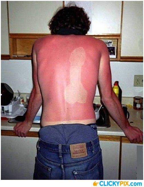 16 Horrible Sunburns (With images) | Tan fail, Funny sunburn ...