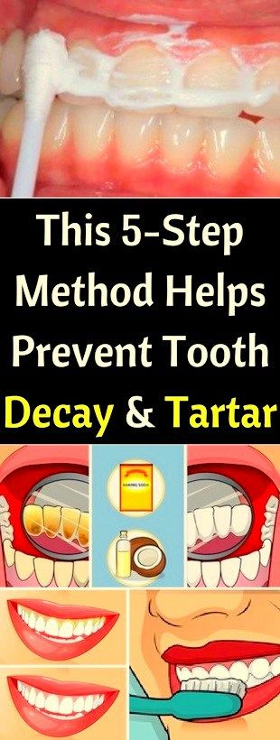 This 5-Step, Method, Helps Prevent, Tooth, Decay & Tartar!!!  #life_style  #fitness