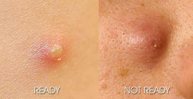 How To Get A Pimple To Pop When Not Ready