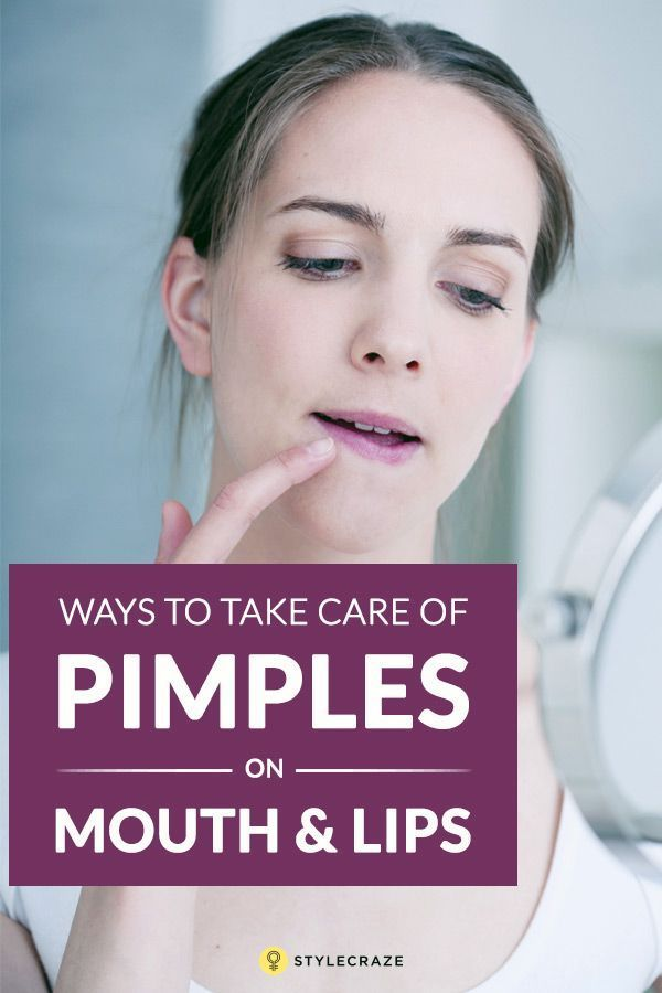 9 Simple Ways To Get Rid Of Pimples On Your Lips Does Toothpaste Get Rid Of Pimples  How To Get Rid Of Pimples On Nose  Crushed Aspirin For Acne  How To Get Rid Of Pimple...