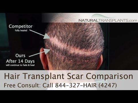 Pin By Hair Transplants Tampa On Hairtransplantstampa Pinterest