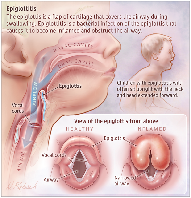 Epiglottitis Medical Knowledge Medical Anatomy Pediatric Nursing