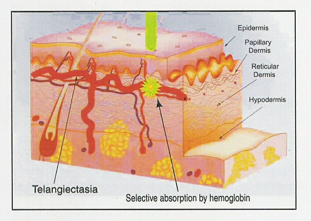 hight resolution of laser and ipl treatments used for telangiectasia rosacea and broken blood vessels laser energy is selectively absorbed by hemoglobin in vessel