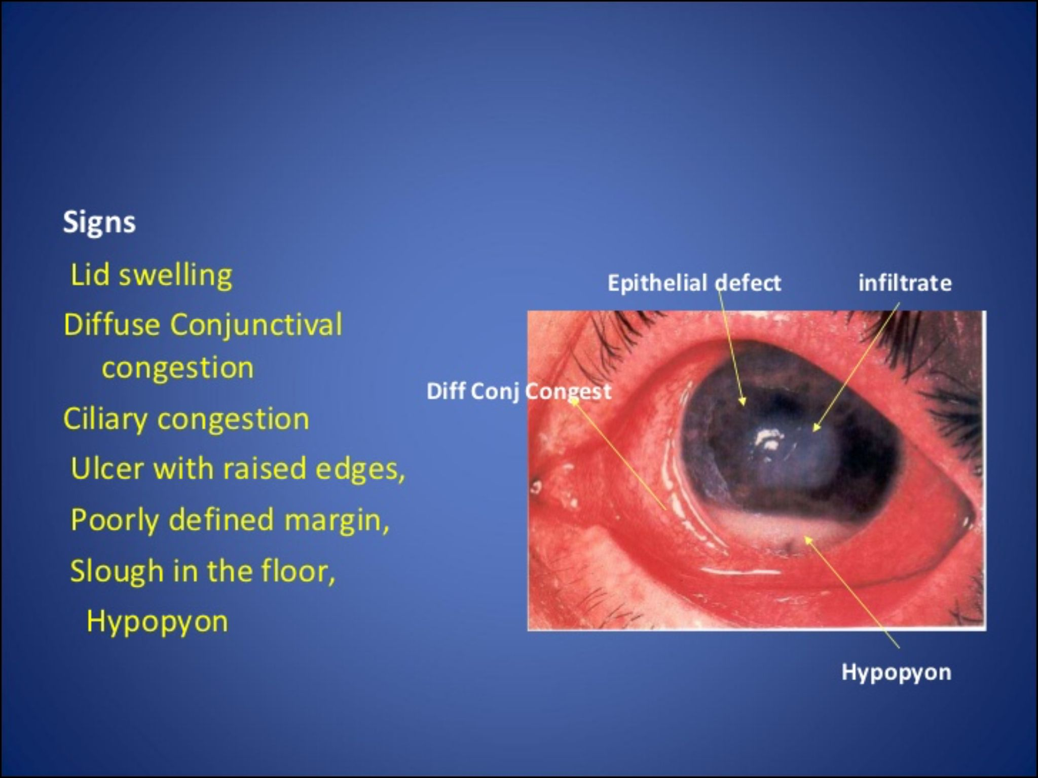 hight resolution of signs of corneal ulcer