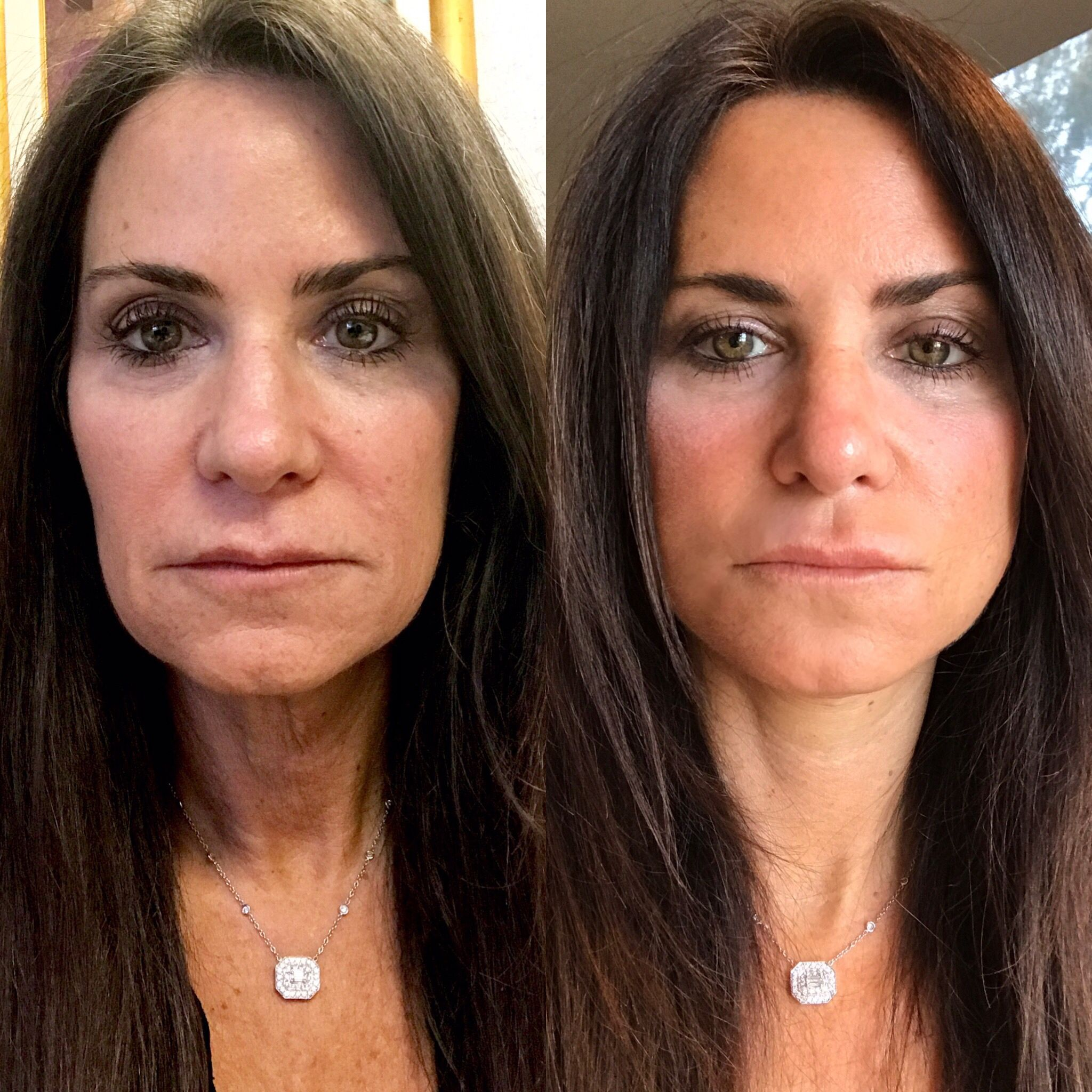 face lift prices