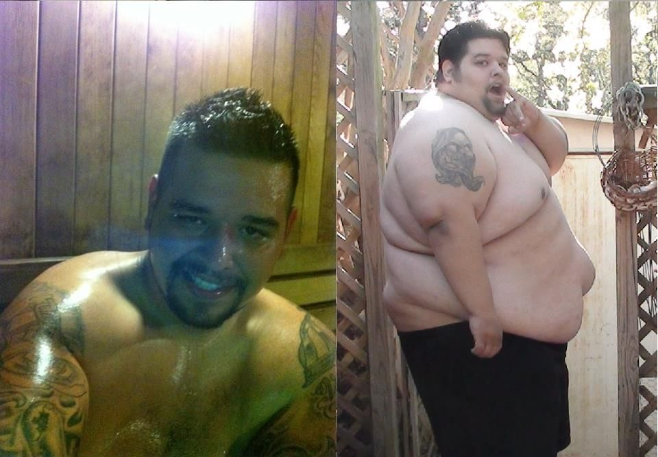 Weight loss abnormal picture 7