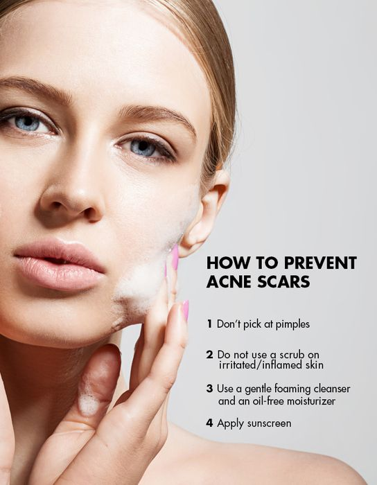 Learn the benefits of at-home microdermabrasion and why it's your best bet against acne scars.