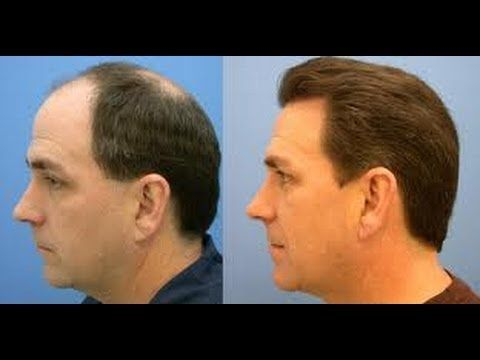 #stophairloss #stophairbreakage #stophairlossforwomen #stophairbreakageonrelaxedhair #stophairfall #stophairlossnaturally #hairtransplant #growhairfasternaturally #growhairfast #growhairfasterforwomen #growhairlong #growhairlongerinaweek #hairgrowthbeforeandafter #hairgrowthproducts #hairgrowthtreatments #hairlosscure #hairlossremedies #hairloss #baldness #baldnesssolution #baldnesscure #arganlife #arganoil