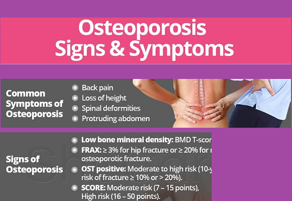 28+ Osteoporosis risk factors and prevention ideas