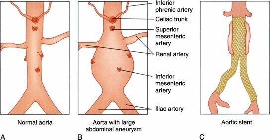 aortic abdominal aneurysm A, Normal aorta. B, An abdominal aortic ...