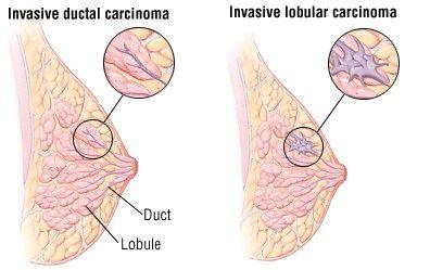 Carcinoma ductal e carcinoma lobular. Entenda as diferenças entre esses dois…