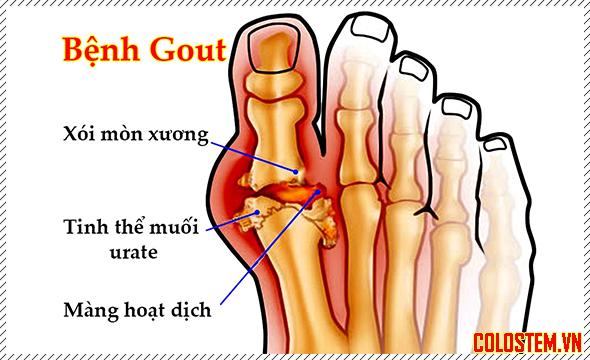 Bị bệnh Gout có nên đi xe đạp hay không ? - Xe đạp thế giới | Bệnh gút, Sức  khỏe, Viêm khớp