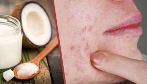 Whip Up This Potent Zit-Zapper Salve For Quick Relief