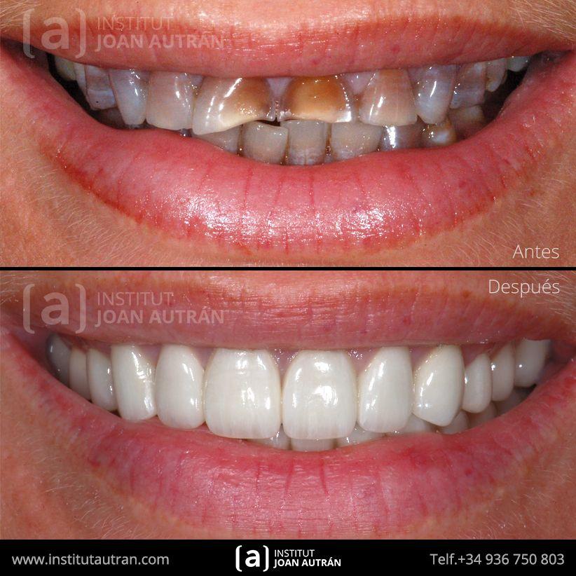 Carillas Dentales Top Smile Carillas Dentales Diseños De Sonrisa Estetica Dental