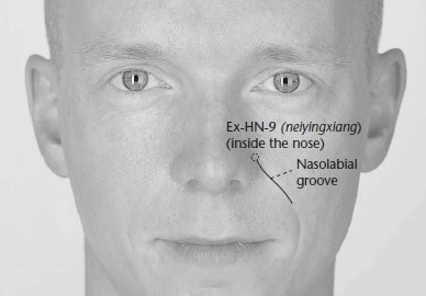 Painful Pressure Points located on the face is ...