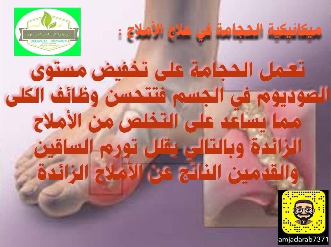 Pin By الحجامة الإسلامية On ميكانيكية الحجامة في علاج الامراض Incoming Call Screenshot Incoming Call