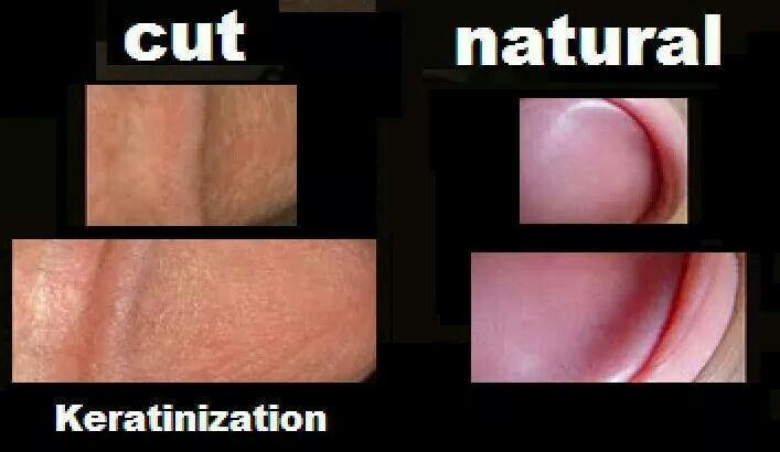 The Difference Between Circumcised Penises And Intact -3865