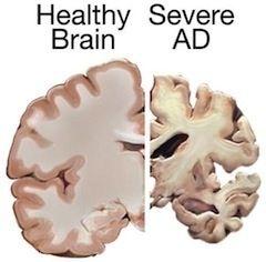 Paleo health alzheimer's disease v health brain