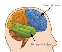 The Basics of Frontotemporal Disorders | Disorders ...