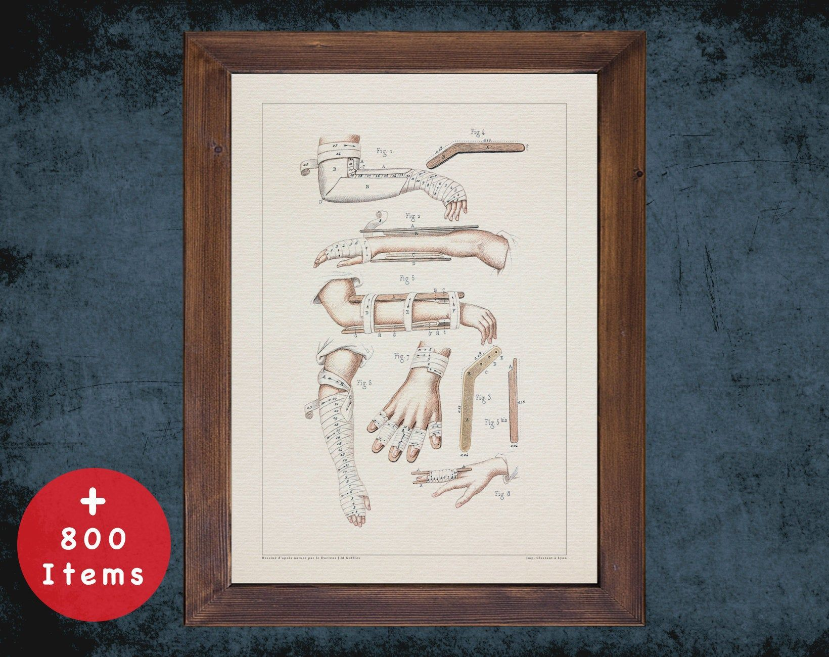 SPLINT ARM ELBOW anatomy art print for medical student gift, Nurse and Nursing doctor office decor #medicalstudents