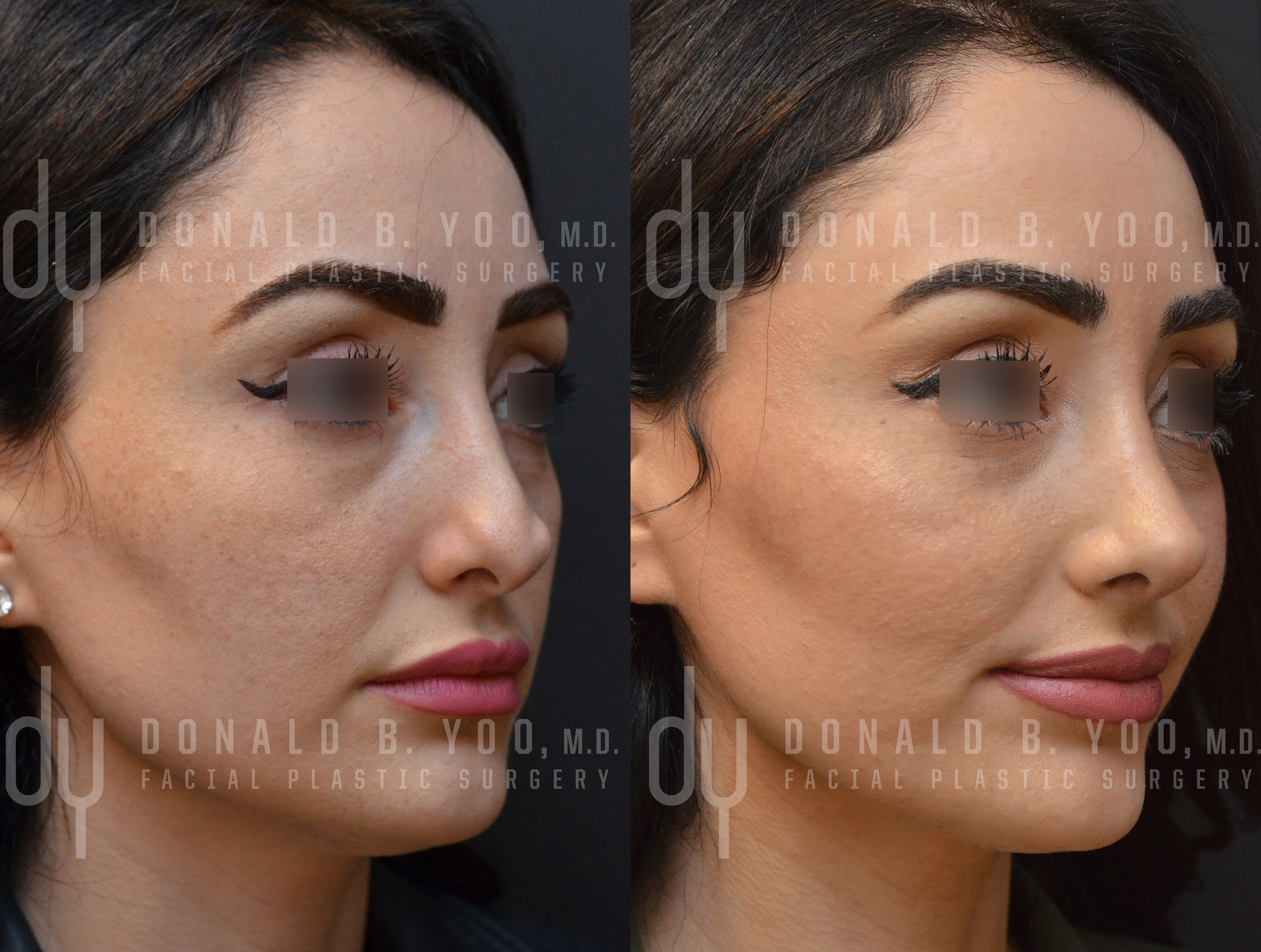 see before and after pictures of rhinoplasty patients treated by beverly hills rhinoplasty specialist dr donald yoo performed a revision rhinoplasty ear cartilage on
