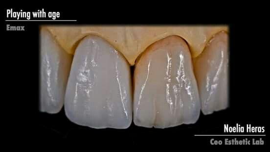 Pin By William Conklin On Dental Teeth Dental Art Dental Ceramics Dental
