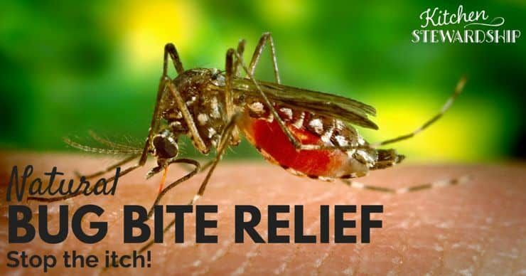Natural home remedies for itchy bug bites natural home
