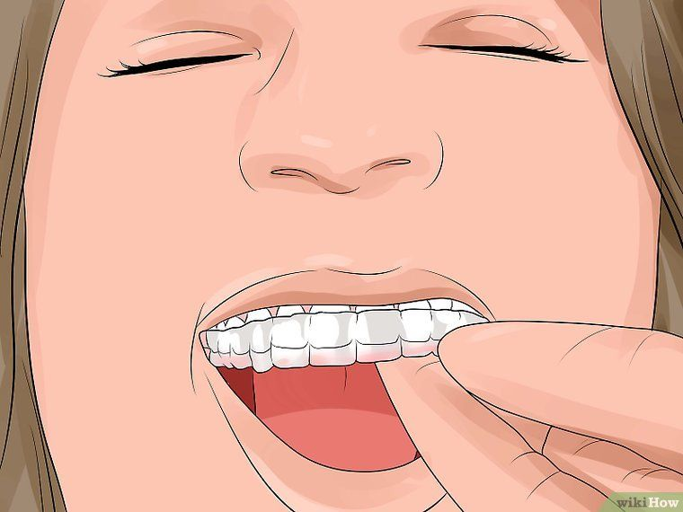 Prepare for Getting Braces Removed Getting braces
