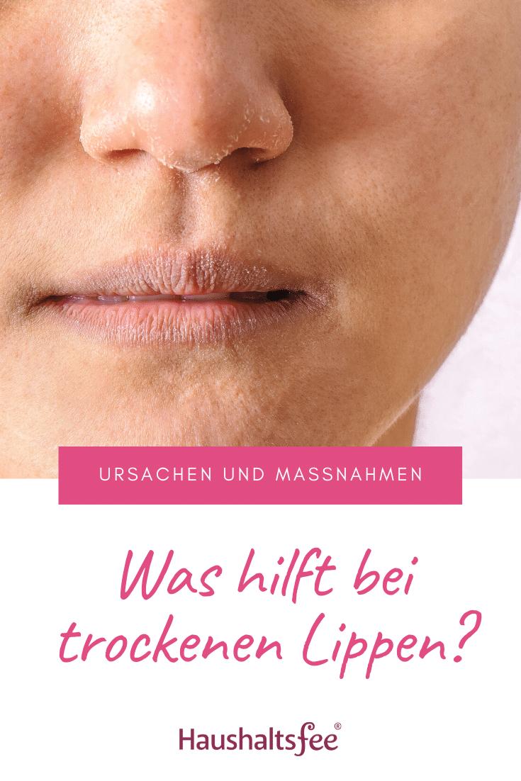 Was hilft bei trockenen Lippen? | Trockene lippen, Lippen