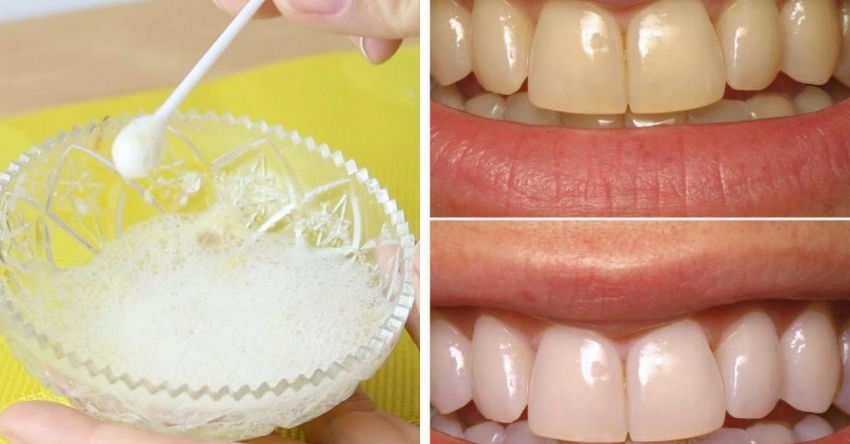 Como Clarear Os Dentes Em 1 Minuto Por Menos De 10 Reais Dentes