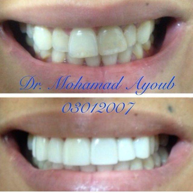 Porcelain #dental #veneers on ten upper anterior #teeth Before and