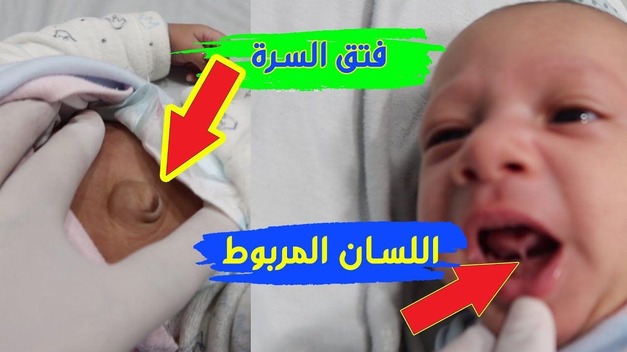 شوفوا علاج فتق السرة واللسان المربوط عند الطفل رحيم وعلاج المغص Parenting Hacks Parenting Baby Face