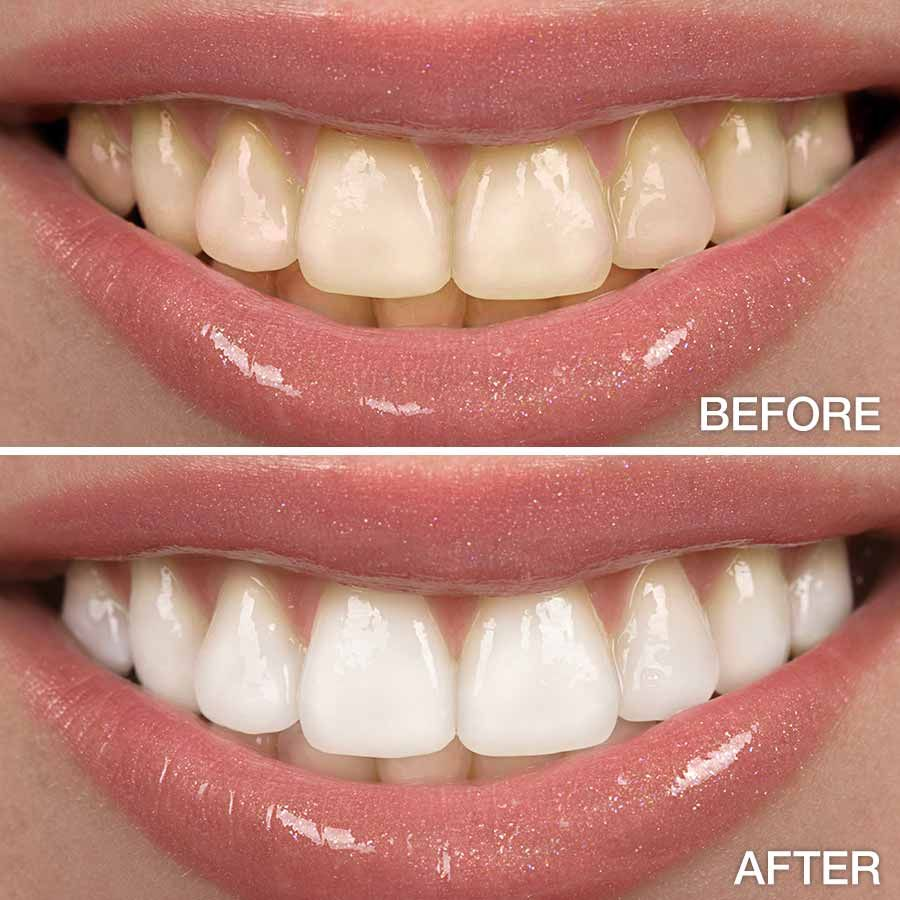 Pin On Looking For A Dentist